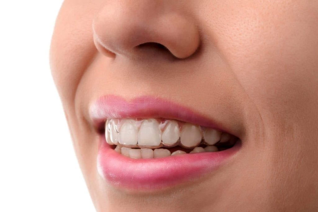 How Long Does Invisalign® Take?