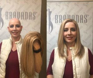 bald before and after